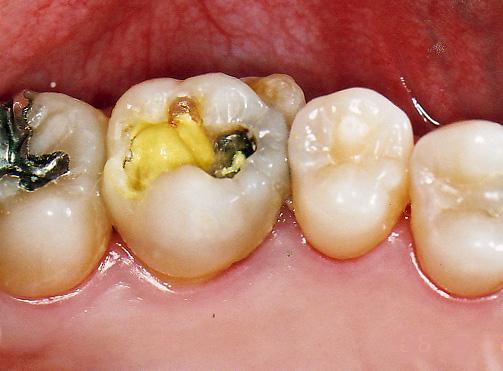 歯の神経を抜かない治療法/歯の神経を取らない治療法3Mix-MP法東京治療中