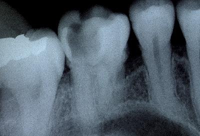 歯の神経を抜かない治療法/歯の神経を取らない治療法3Mix-MP法治療東京レ線