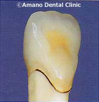 歯茎が黒くならない差し歯