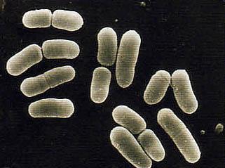 乳酸菌LS1による歯周病予防