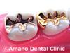 歯の白い斑点(ホワイトスポット)治療In