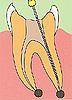 歯の強化痛くない虫歯歯周病治療歯の根の治療