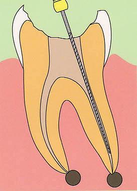 歯の根の治療(根管治療)