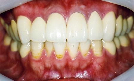 顎関節症の治療法