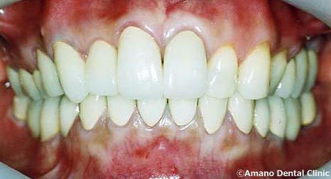 噛み合わせ治療顎がカクカクする治療後
