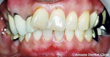 噛み合わせ治療顎がカクカクする治療前