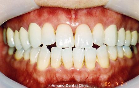 噛み合わせ治療顎の音痛み後
