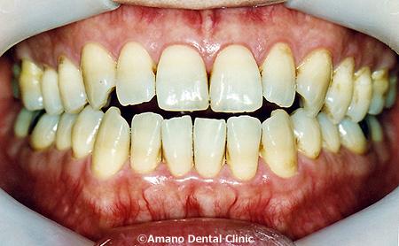 良い噛み合せ(犬歯誘導)治療前