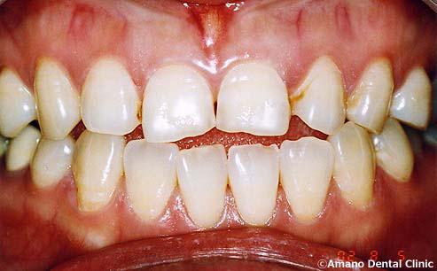 審美歯科治療例