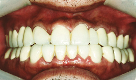 審美歯科 治療後