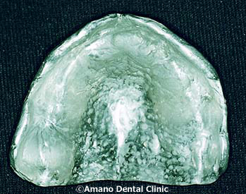 Metal base denture
