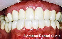 ひどい虫歯の治療後33歳男性