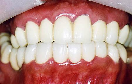 歯科恐怖症の治療後33歳男性