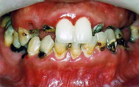 歯科恐怖症の治療前33歳男性
