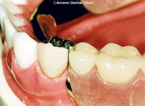 良く噛める入れ歯アタッチメント入れ歯3