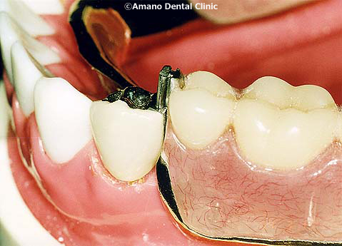 attachment denture