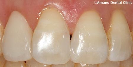 変色しにくいプラスチックの詰め物コンポジットレジン治療後ay-11