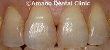 変色しにくいプラスチックの詰め物コンポジットレジン治療前ay-11