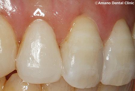 変色しにくいプラスチックの詰め物コンポジットレジン治療後ay-211