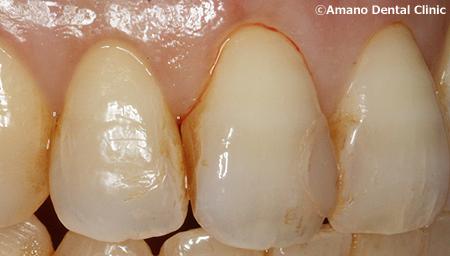 変色しにくいプラスチックの詰め物コンポジットレジン治療前ay-211