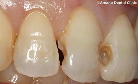 変色しにくいプラスチックの詰め物コンポジットレジン治療中ay-211