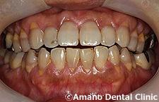 悪い噛み合わせによる歯の揺れ(咬合性外傷)オープンバイト
