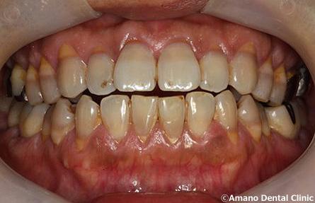 悪い噛み合わせによる歯の揺れ(咬合性外傷)実際例写真