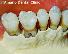 悪い噛み合わせによる歯の揺れ(咬合性外傷)骨溶け