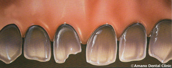 割れた歯の治療法