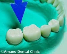 悪い噛み合わせによる歯の揺れ(咬合性外傷)正常力