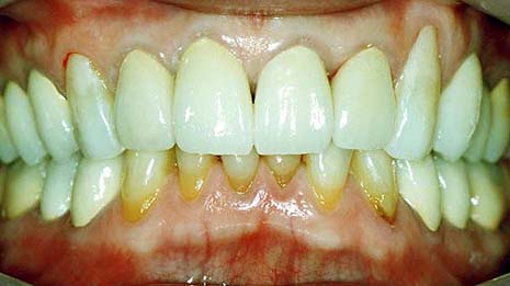悪い噛み合わせによる歯の揺れ(咬合性外傷)治療後