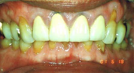 悪い噛み合わせによる歯の揺れ(咬合性外傷)治療前