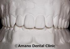 低い深い噛み合わせ模型前歯正面