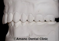 低い深い噛み合わせ模型前歯側面