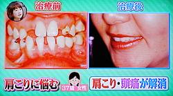 噛み合わせと頭痛,顔のゆがみ,2重顎,全身状態13
