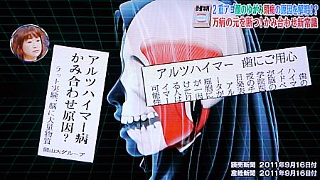 噛み合わせと頭痛,顔のゆがみ,2重顎,全身状態2