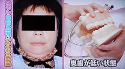 噛み合わせと頭痛,顔のゆがみ,2重顎,全身状態5