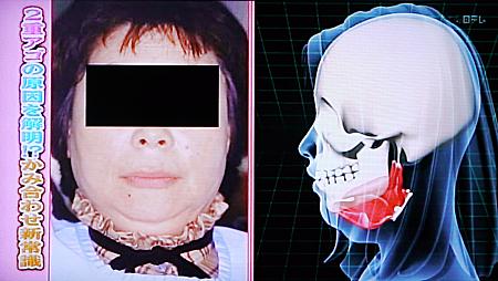 噛み合わせと頭痛,顔のゆがみ,2重顎,全身状態6