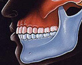 悪い噛み合わせによる歯の揺れ(咬合性外傷)図