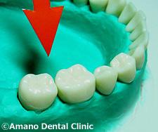 悪い噛み合わせによる歯の揺れ(咬合性外傷)過度上方力