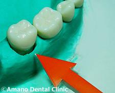 悪い噛み合わせによる歯の揺れ(咬合性外傷)過度横方力