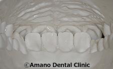 低い深い噛み合わせ正常模型前歯裏面