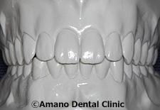 低い深い噛み合わせ正常模型前歯正面