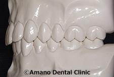 低い深い噛み合わせ正常模型前歯側面