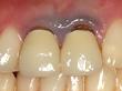 歯茎が黒い差し歯の治療写真