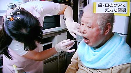歯のケアで健康回復