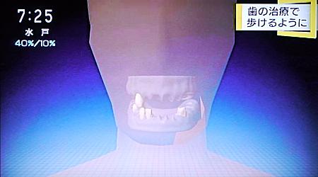 歯のケアで健康回復4