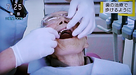 歯のケアで健康回復5