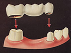 歯を削らないブリッジヒューマンブリッジ従来型