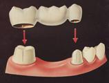 歯科恐怖症治療ブリッジ写真